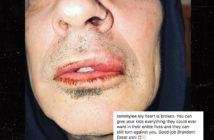 0306-tommy-lee-lip-instagram-caption-1